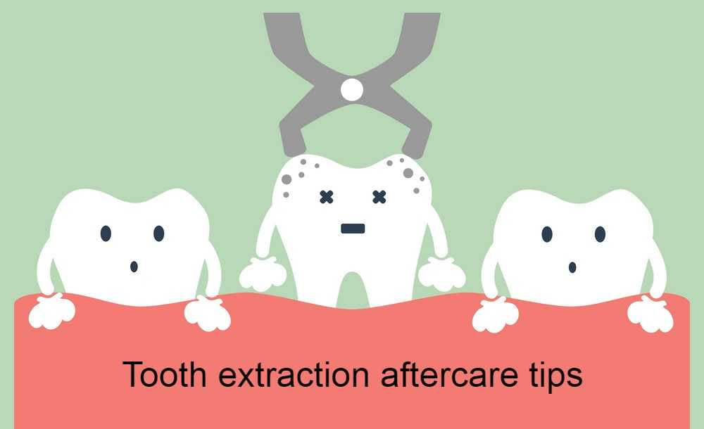 tooth-extraction-aftercare-tips
