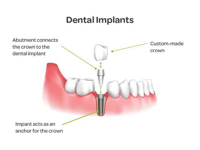 what-are-dental-Implant
