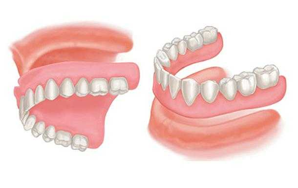 what-is-a-complete-or-full-denture