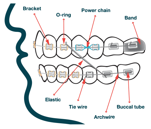 what-is-orthodontic-braces-treatment