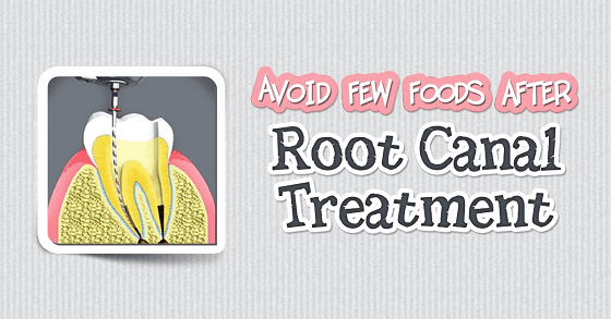what not to eat after root canal treatment