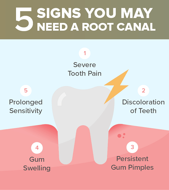 Root canal treatments are good or bad