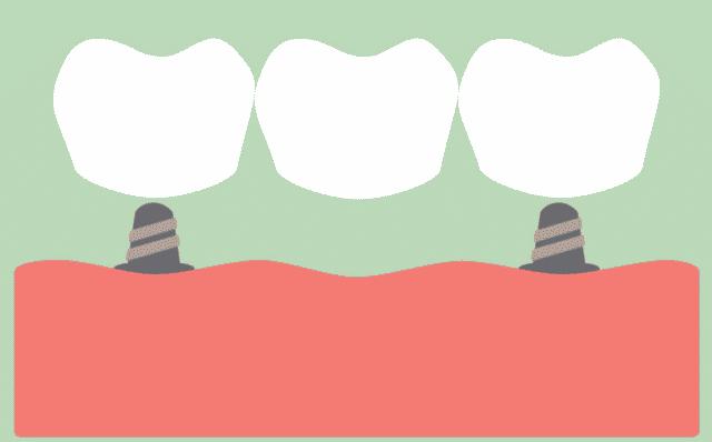 Dental Crowns Procedure