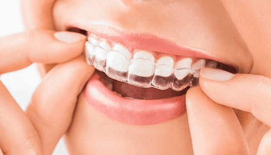 clear-aligners-covid19