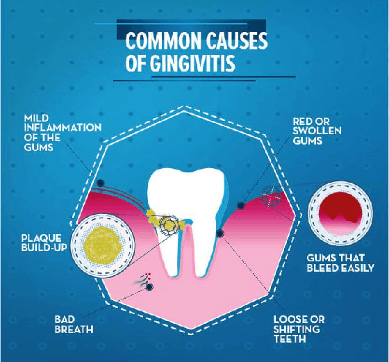 common-causes-of-gingivitis
