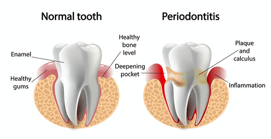 differences between gingivitis and periodontitis