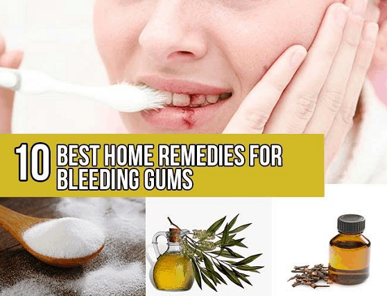 home remedies for bleeding gum