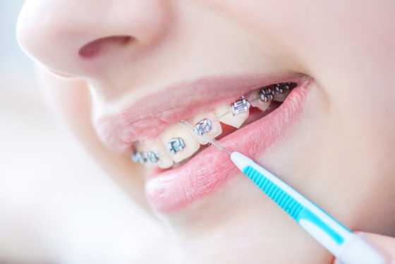 interdental flossing