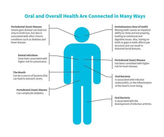 oral-health-affects-overall-health