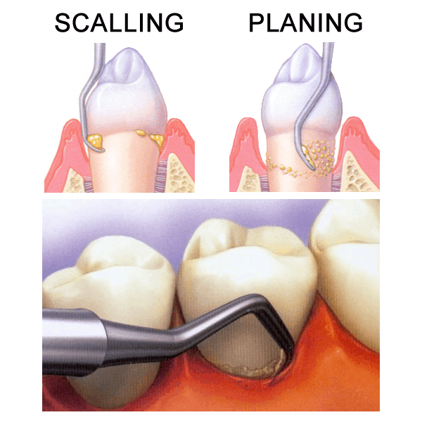 periodontal scaling & planing