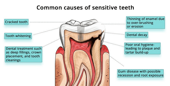 sensitive teeth causes