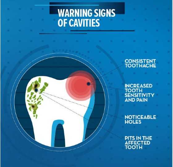 tooth decay symptoms