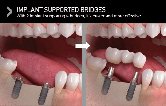 types-dental-bridges-implant-supported