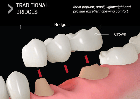 types-dental-bridges