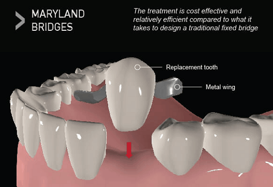 types of dental bridge maryland
