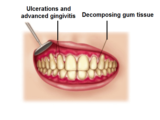 Ulceration and advanced gingivitis