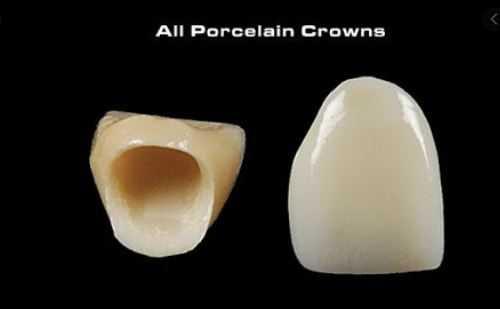 all porcelain crowns