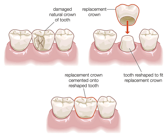 cracked tooth syndrome treatment
