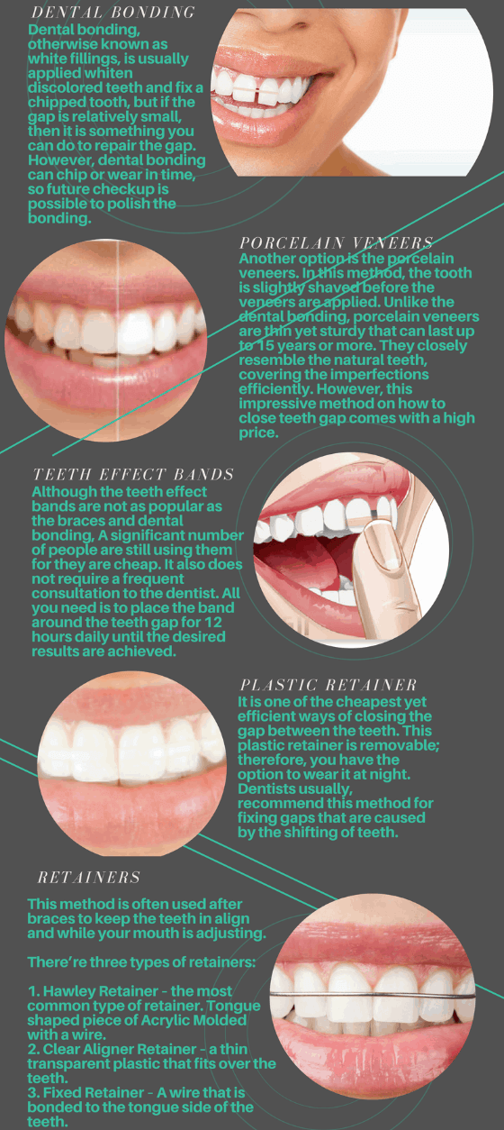 gaps in front teeth