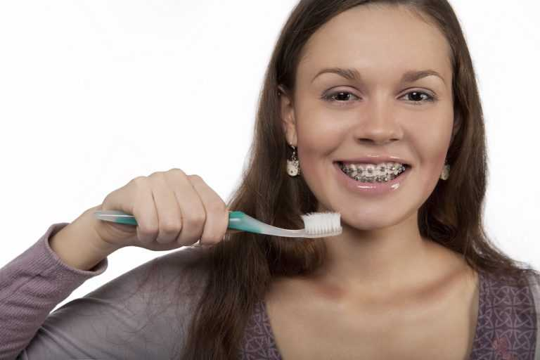 how-to-keep-your-braces-clean