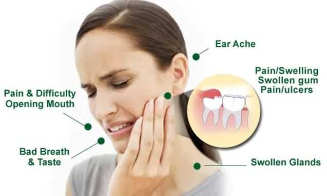 impacted wisdom teeth extraction