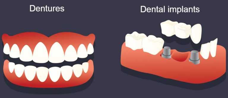 pros and cons of dental implants vs dentures