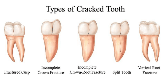 types of cracked tooth