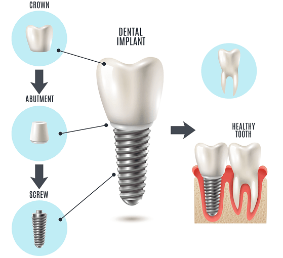 dental crown and dental implants