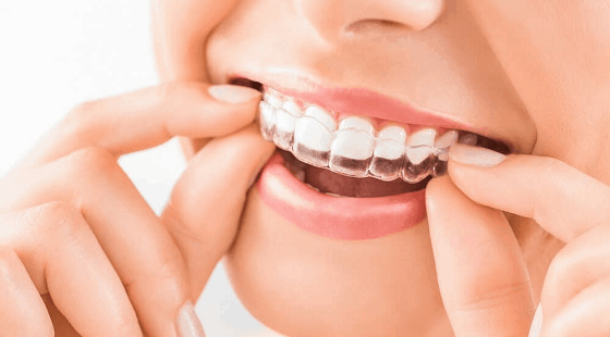 invisible aligners