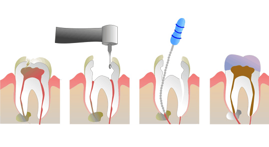 pulpotomy procedure
