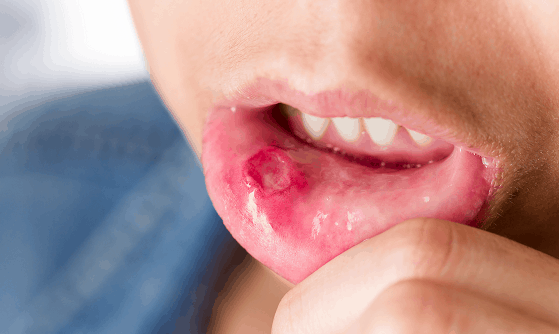 stress and oral health mouth ulcer