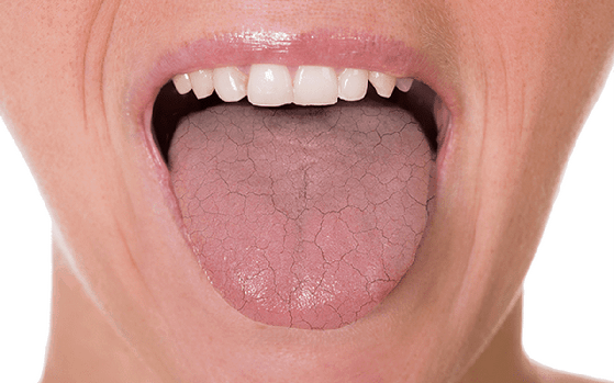 stress causes dry mouth