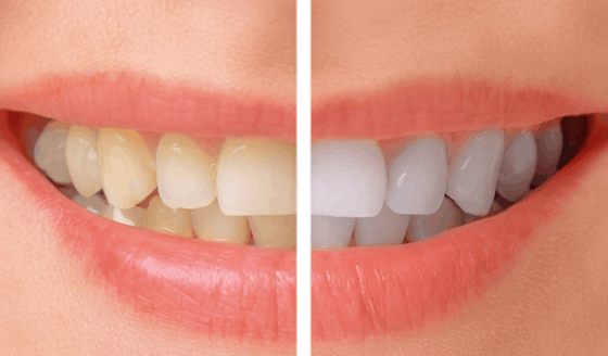 teeth whitening smile makeover