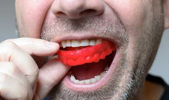 dental mouth guard
