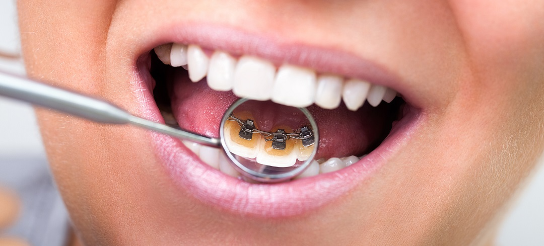 7 Thing You Should Know About Lingual Braces