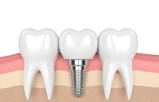 Bone structure of Dental Implant