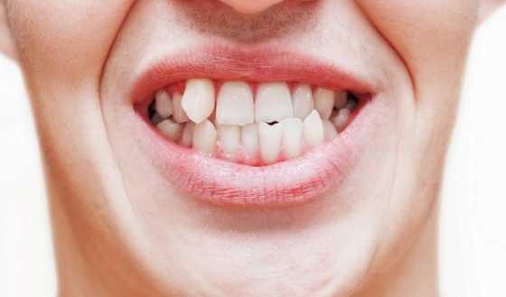 Causes of poorly alignment of teeth