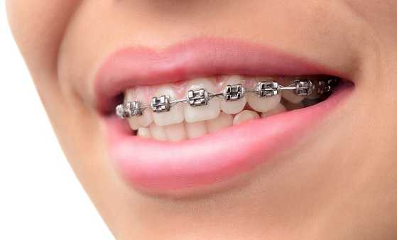 Cost of Metal Braces