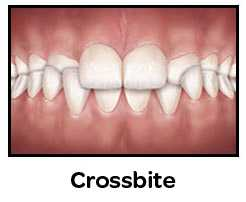 Crossbite teeth