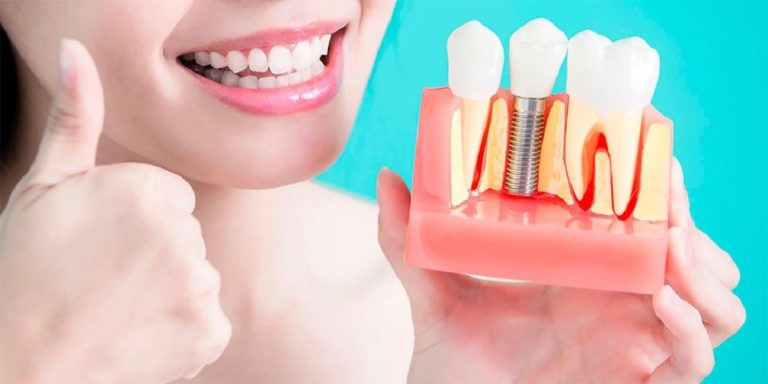 Dental Implants Jaw-Dropping Facts