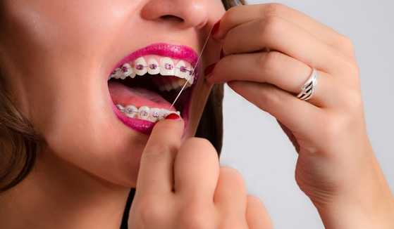 Flossing your teeth with Braces