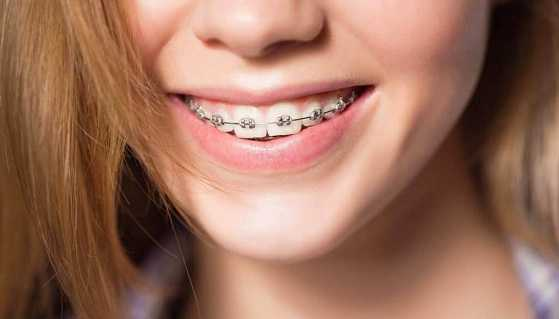 How care your teeth when you wear Braces
