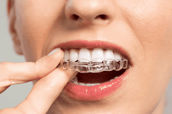 Lift the Clear aligner