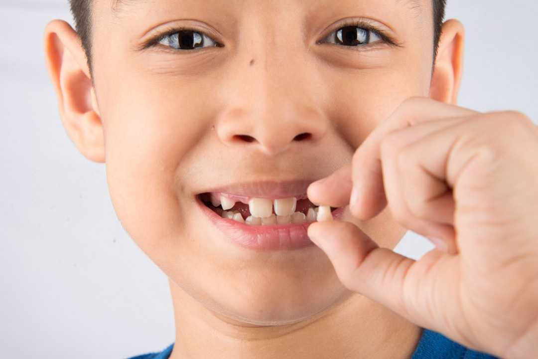Preventing Children from Having Crooked Teeth