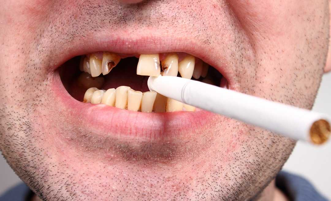 Smoking causes gum disease, oral cancer, and more