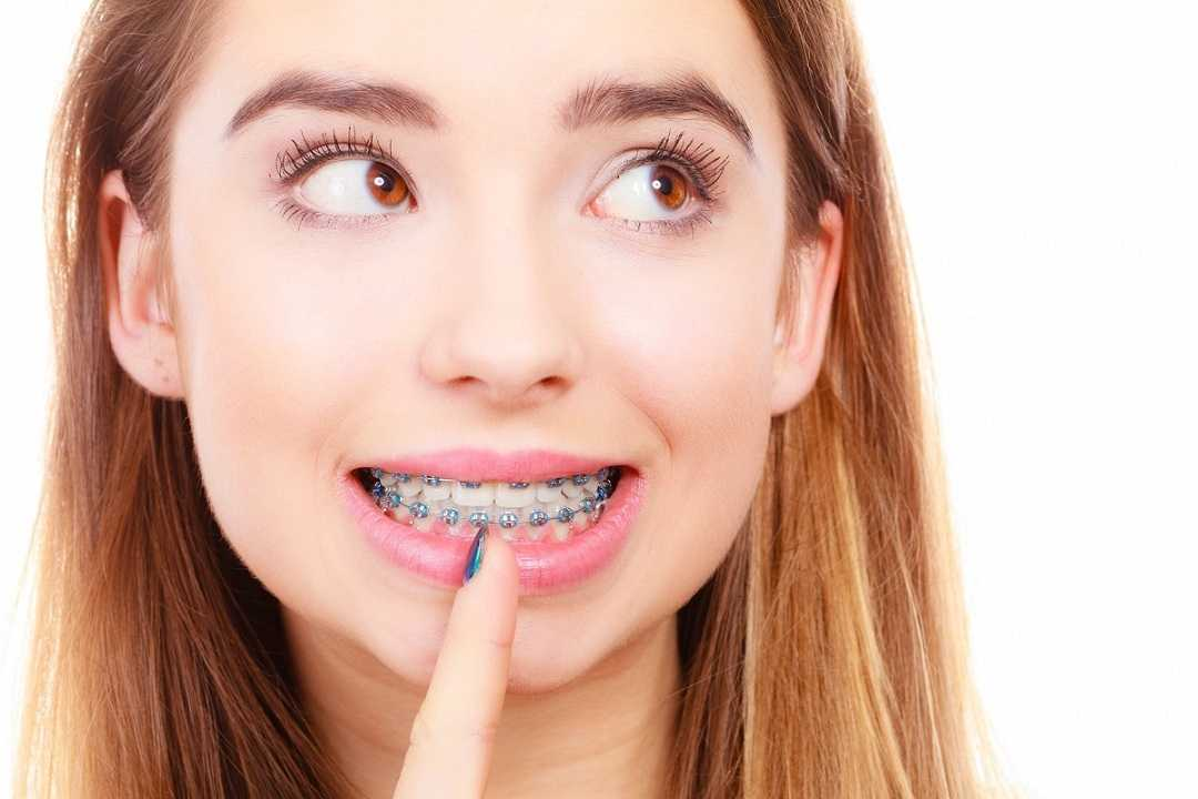 The Cost of Braces - It's More Affordable than you think