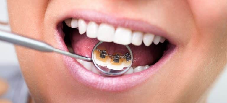 Thing-You-Should-Know-About-Lingual-Braces