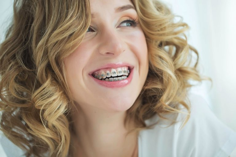 Tips and Tricks for braces patients