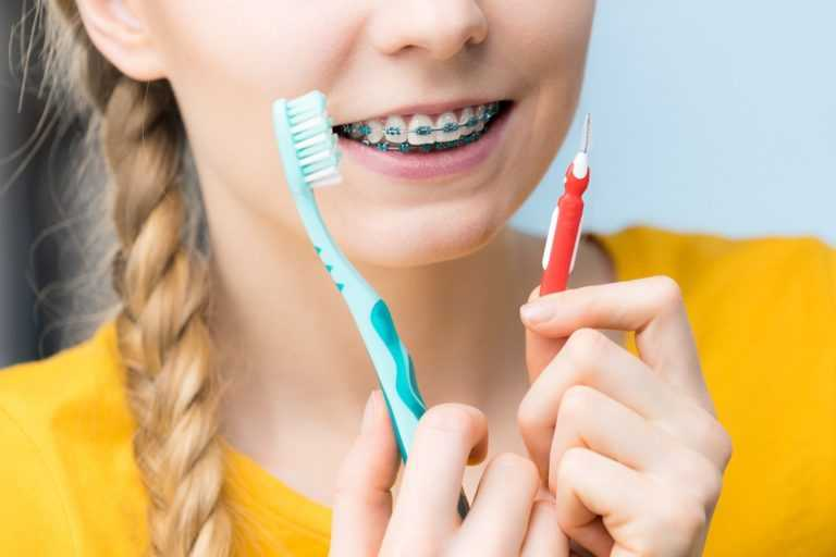 What-Happens-If-You-Have-Braces-and-Dont-Brush-Your-Teeth