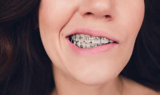 What do elastics for braces mean